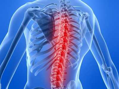 Как проходит лечение остеохондроза